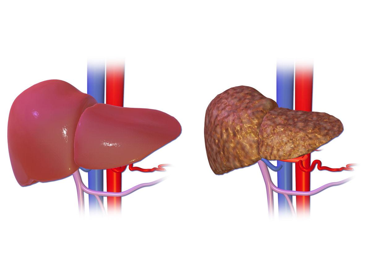 cancer de higado por cirrosis hepatica