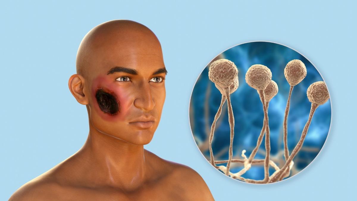 Hongo negro en Edomex. Reportan primer caso infección ligada a covid